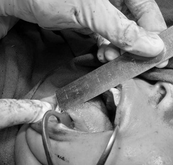 नेपाल मेडिकल कलेजले खोलिदियो निशाको मुख